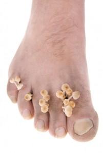Hvordan behandles grimme negle