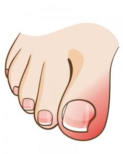 tykke negle på tæer