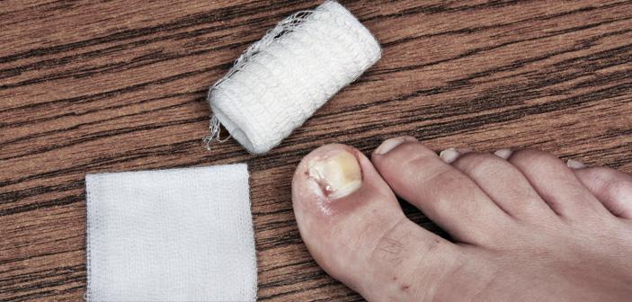 Døjer du med nedgroede negle?