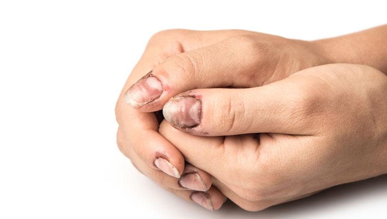 Vaer opmaerksom paa dine negle